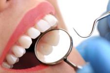 10-lucruri-dentist