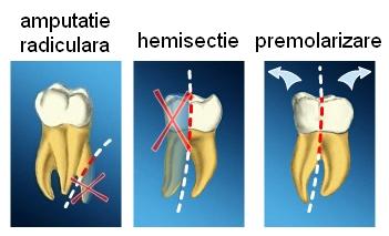 Amputatie radiculara, hemisectie si premolarizare