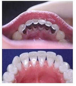 Imobilizare dinti parodontotici