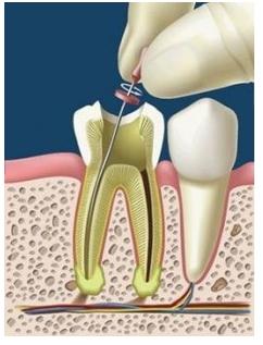 Obturatie de canal - endodontie
