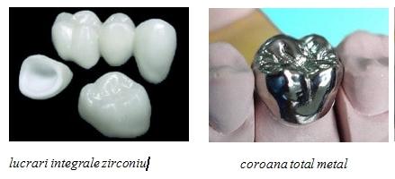 Proteza stabilizata pe implante2