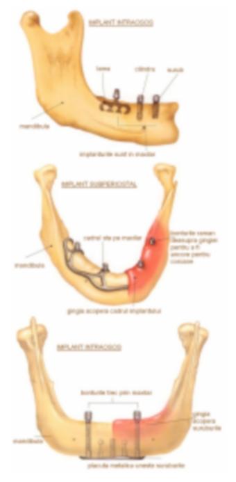 implant-dentar-2