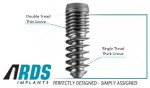 implantul-dentra-300x177